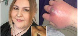 Probudila se sa UJEDOM ovog insekta, a kroz par DANA lekari su se borili da joj spasu ruku